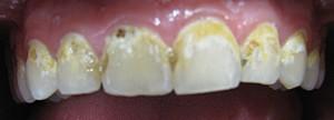 Cosmetic Bonding cavities