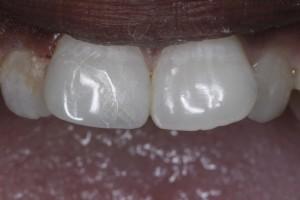 Cosmetic dentistry bonding in Spring TX.