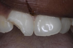 Chipped tooth fixed.