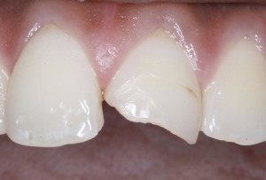 Cosmetic bonding chipped tooth.