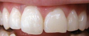 Cosmetic Dentistry Spring TX