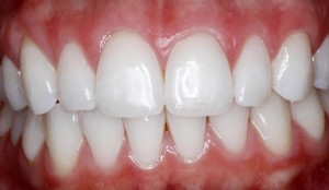 Teeth whitening with amazing results!