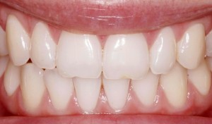 Tooth whitening in Spring TX.