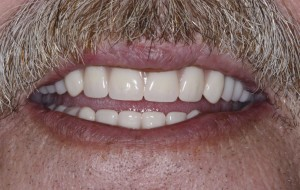 Affordable dentures with payment plans.