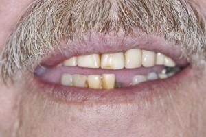 Affordable dentures in Spring TX.